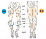 """自体脂肪移植联合吸脂矫正""""O""""型腿"""